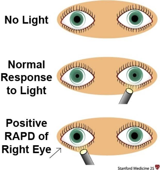 Pupil Reflex