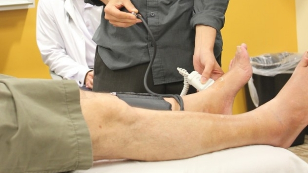 Do You Know How to Measure an Ankle Brachial Index?