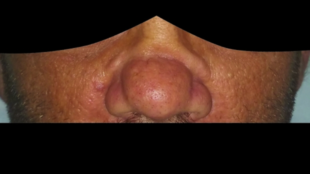 The Saddle Nose - Overview