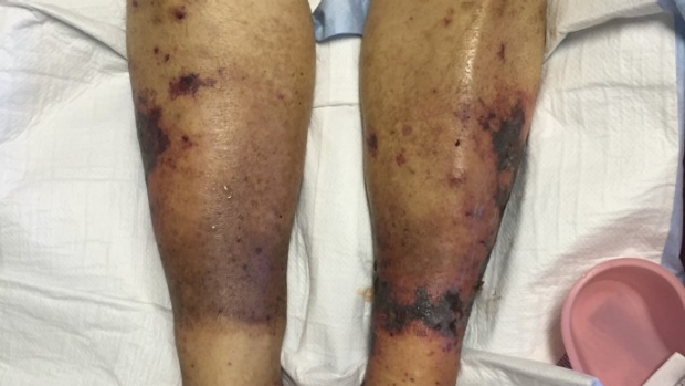 What is the exam of calciphylaxis?