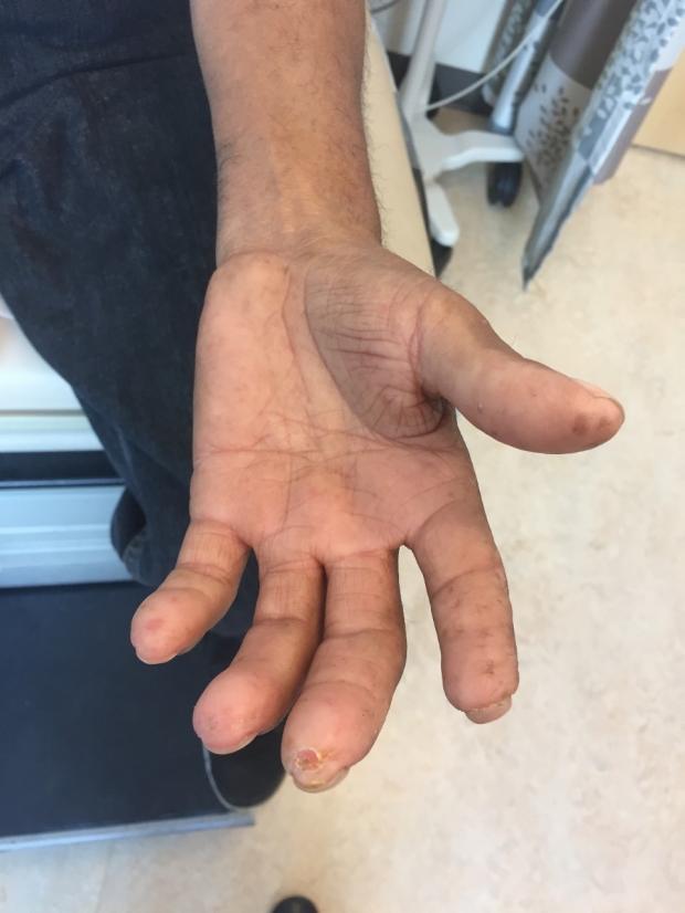 Fingertip digital pits / digital ulceration / scleroderma example
