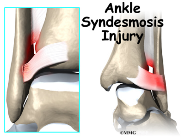 Ankle syndesmosis injury