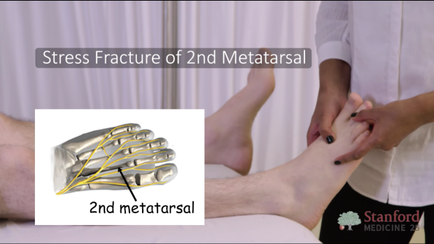 Stress fracture of 2nd metatarsal