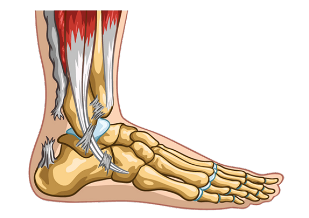 Achilles tendon rupture.