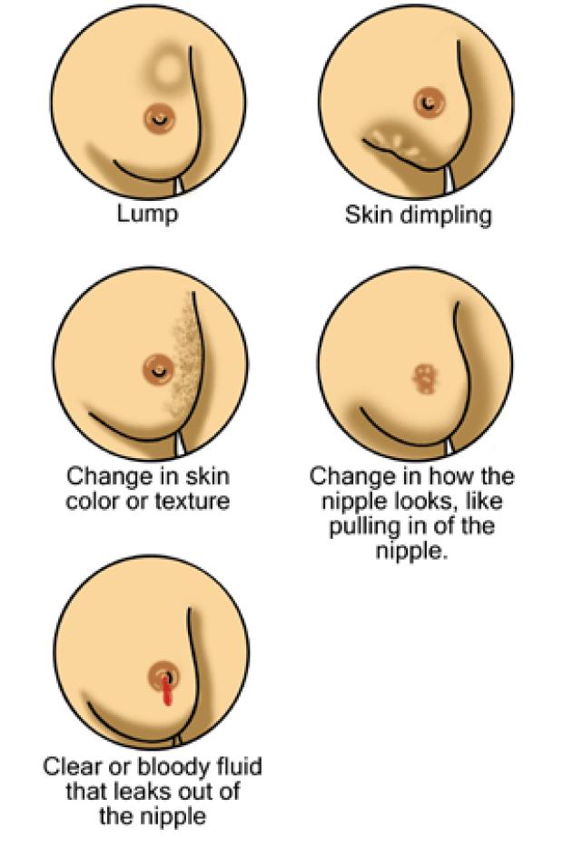 breast exam findings