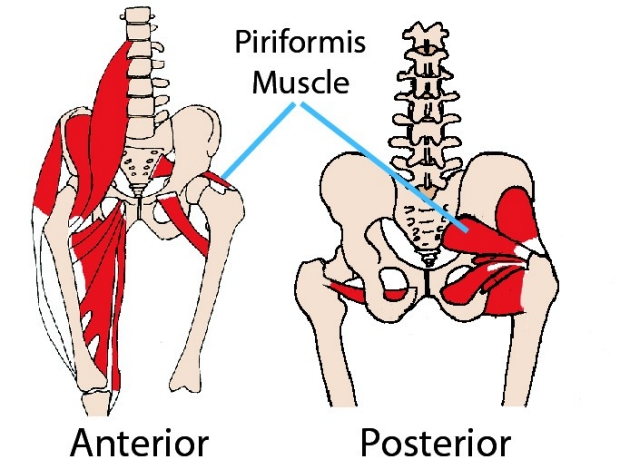 assessment for Piriformis Syndrome