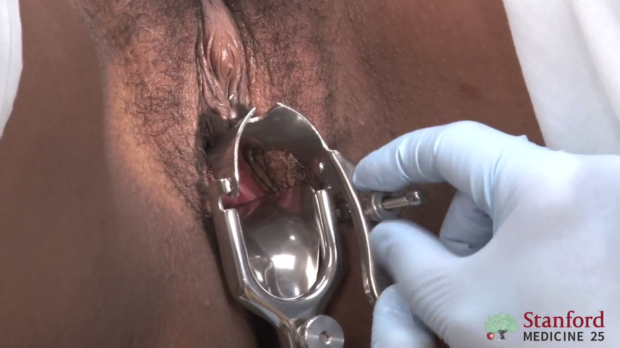 Open speculum until cervix is in sight