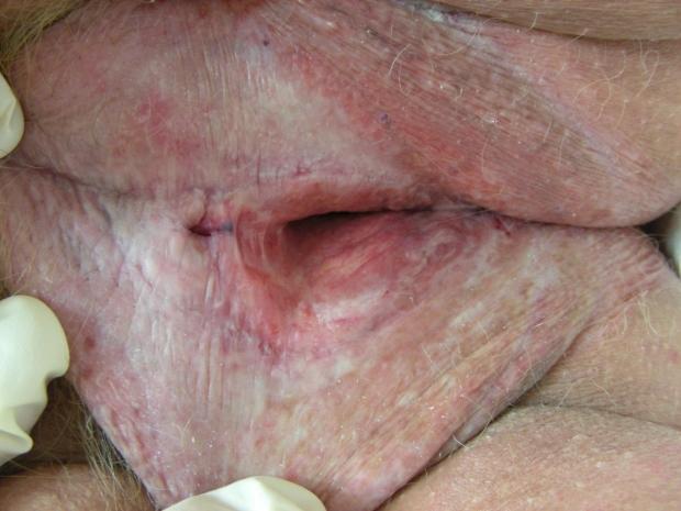 Lichen sclerosis