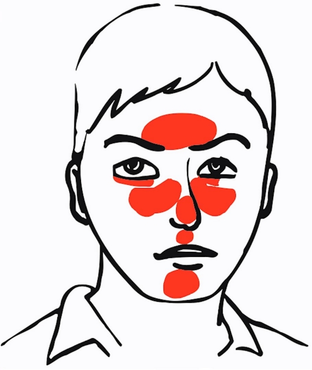 rosacea distribution