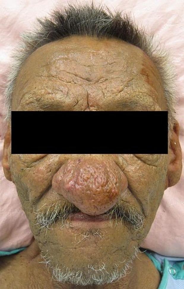 rhinophyma