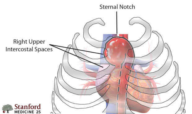 Ascending aortic aneurysm: pulsations in the right upper ICS and sternal notch.