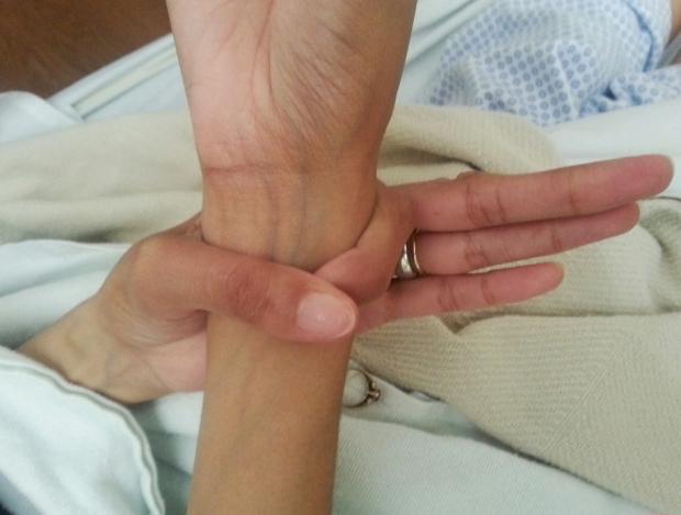 Positive wrist sign.