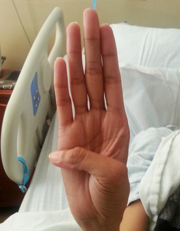Positive thumb sign.