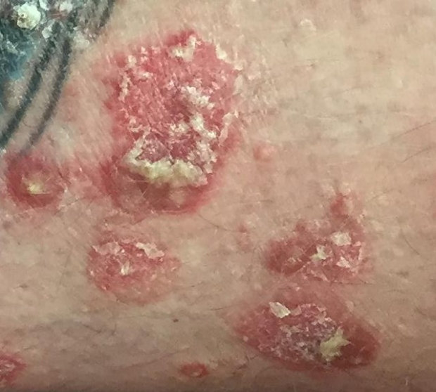 scale from psoriasis
