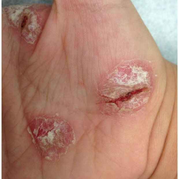 Psoriasis fissuring of hand