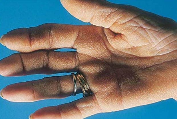 Tripe Hand (Velvet Palms)