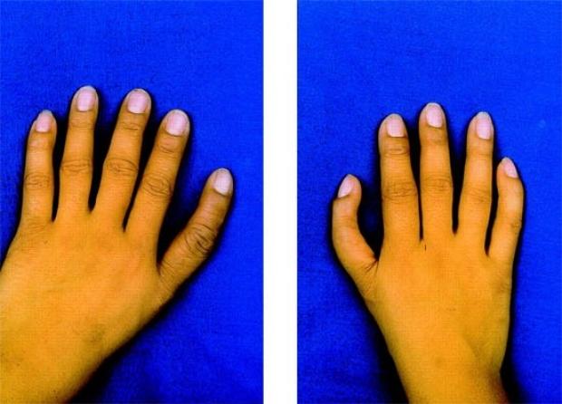Holt-Ohram Syndrome
