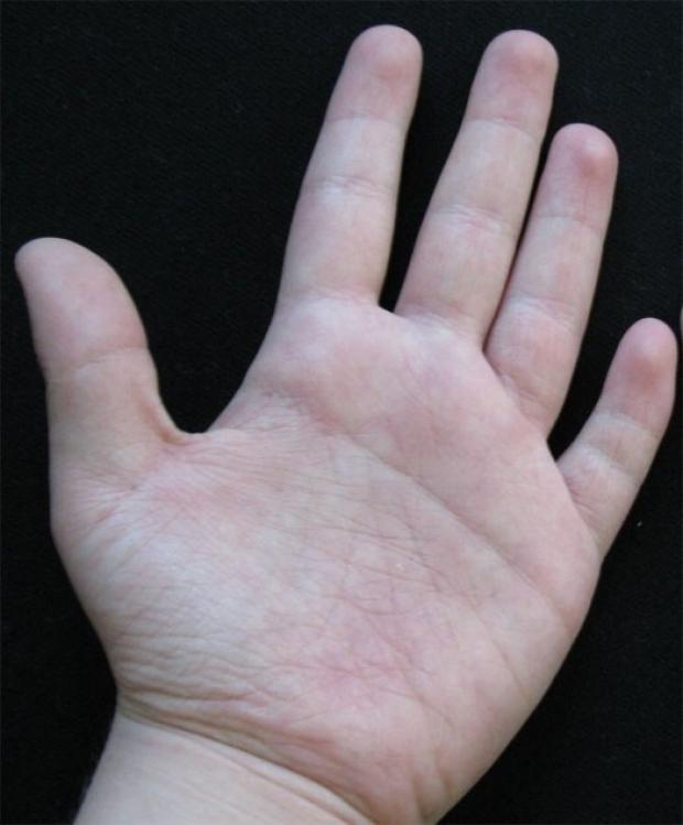 Single palmar crease (Simian crease)