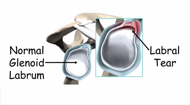 Anatomy of the glenoid fossa.
