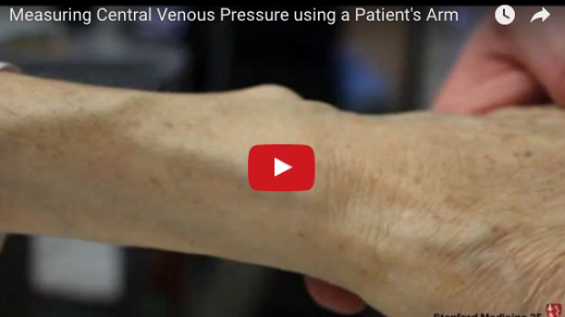 Measuring Central Venous Pressure with the Arm