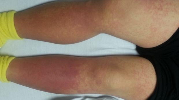 Your patient gets this rash, what's the diagnosis?