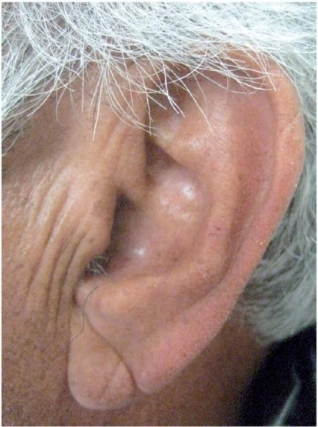 Diagonal earlobe crease (Frank\'s sign) | Stanford Medicine 25 ...