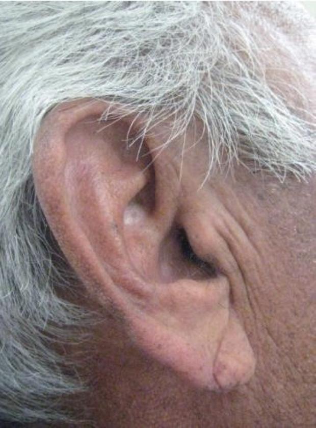 Diagonal earlobe crease (Frank\'s sign) | Stanford Medicine 25 ...