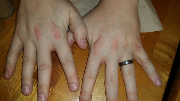 What is amyopathic dermatomyositis?