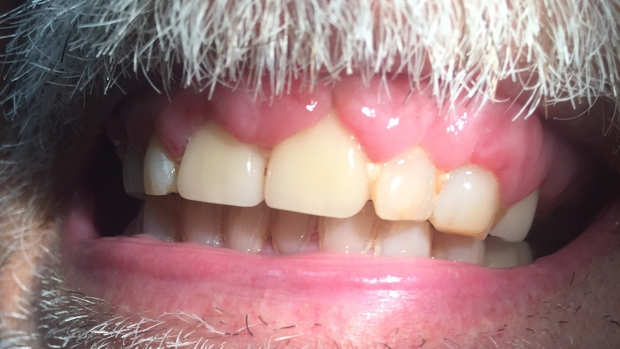 Gingival Hyperplasia in Acute Leukemia