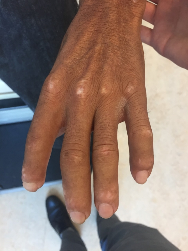 Top of hand exhibiting sclerodactyly / diffuse cutaneous systemic sclerosis