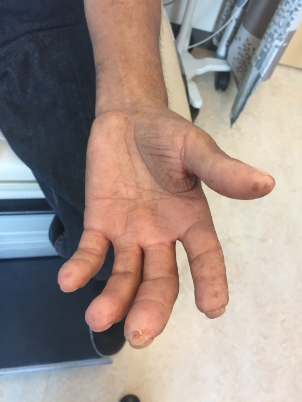 Fingertip digital pits / digital ulceration / scleroderma example