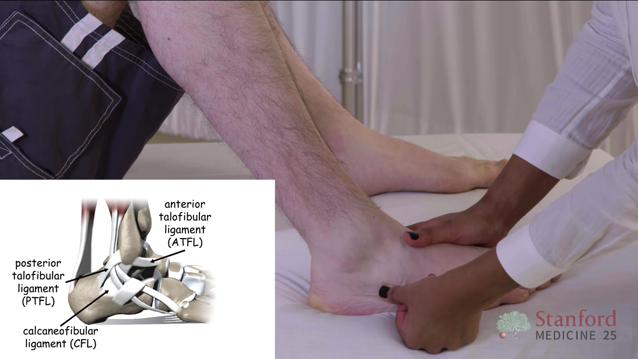 Ankle And Foot Exam Approach To Stanford Medicine 25 Stanford