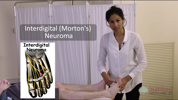 Interdigital (Morton's) Neuroma
