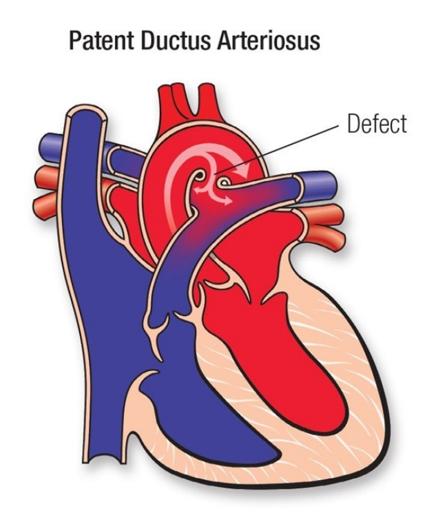 Patent Ductus Arteriosus (credit to the American Heart Association).