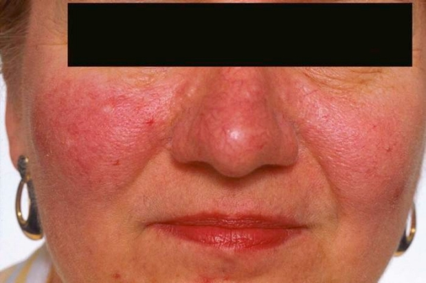 Dermatology Exam Acne Vs Rosacea Stanford Medicine 25