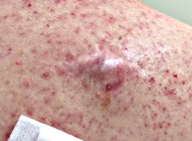 Example of Epidermal inclusion cyst (sebaceous cyst / epidermoid cyst)