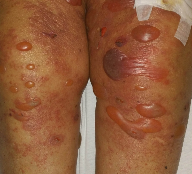 Example of bullous pemphigoid large fluid-filled blisters on legs