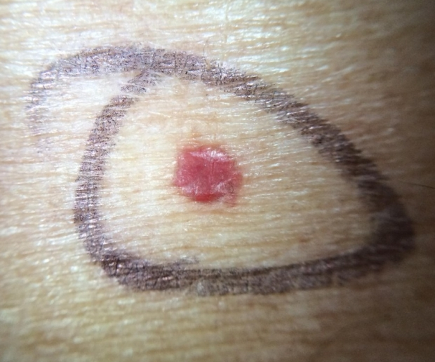 Example of cherry angioma showing small round red growth on skin