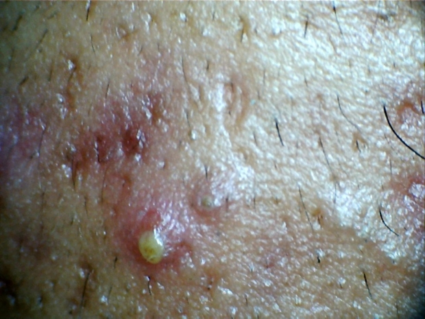 Example of acne skin rash