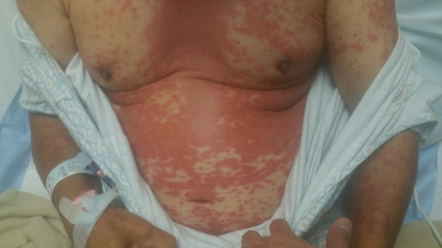 Drug eruption showing generalized rash