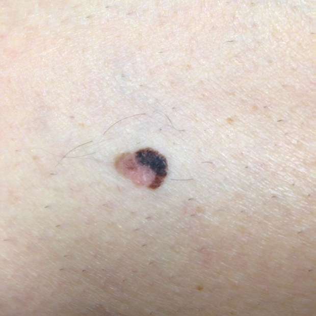 small melanoma