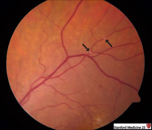 retinal emboli and infarcts
