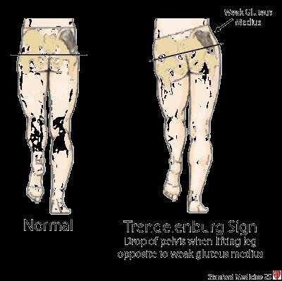 myopathic gait Gallery