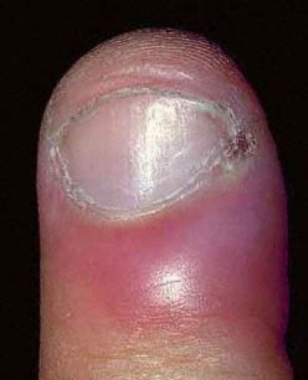 The Hand Examination | Stanford Medicine 25 | Stanford Medicine