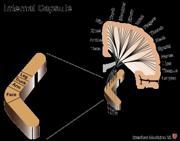 Internal Capsule Stroke | Stanford Medicine 25 | Stanford