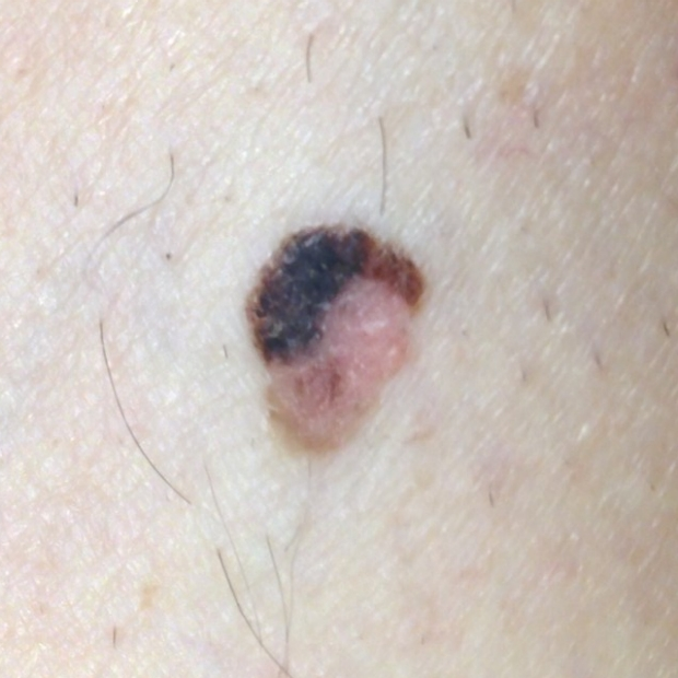 color change of melanoma