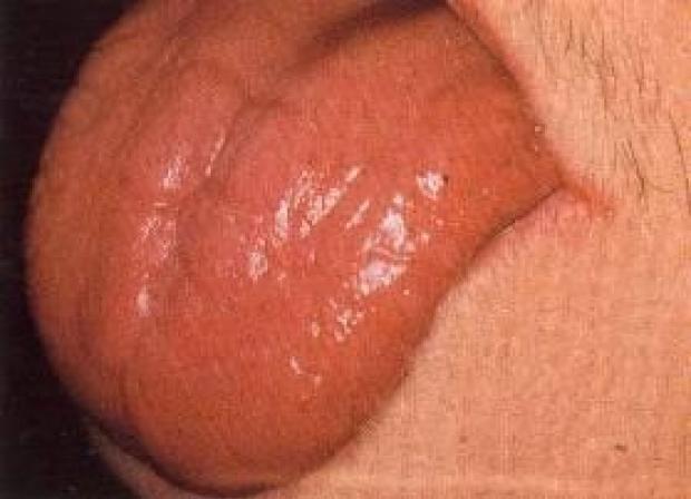 Examination of the Tongue   Stanford Medicine 25 ... B12 Deficiency Tongue