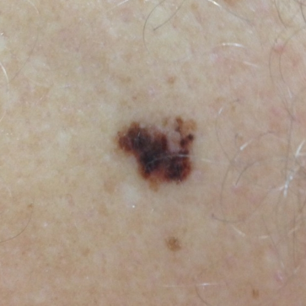 asymmetry of melanoma